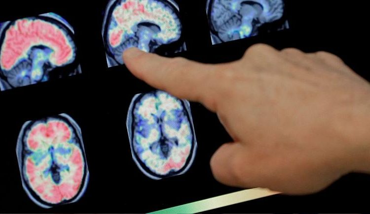 یافته جدید محققان در خصوص تاثیر مخرب ویروس کرونا بر مغز!